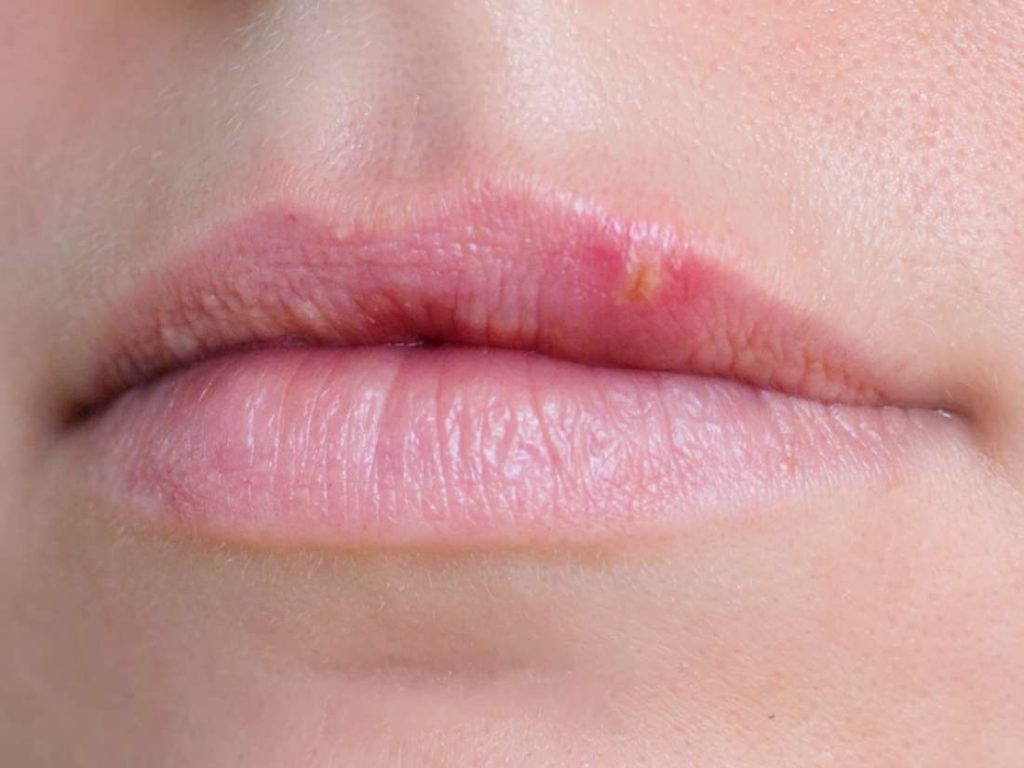 pimple vs cold sore